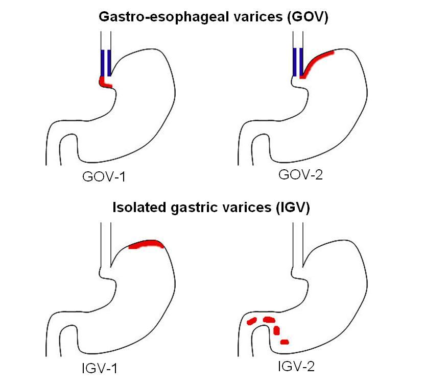 varices classificatie